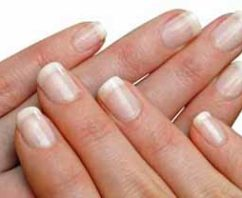 How To Get Rid Of Stained Yellow Nails